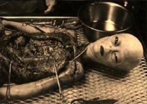 Alien-Autopsie